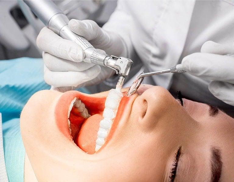 Teeth Cleaning In Toronto