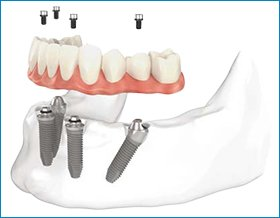 all on 4 dental implants Toronto
