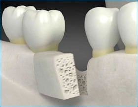 bone grafting Toronto