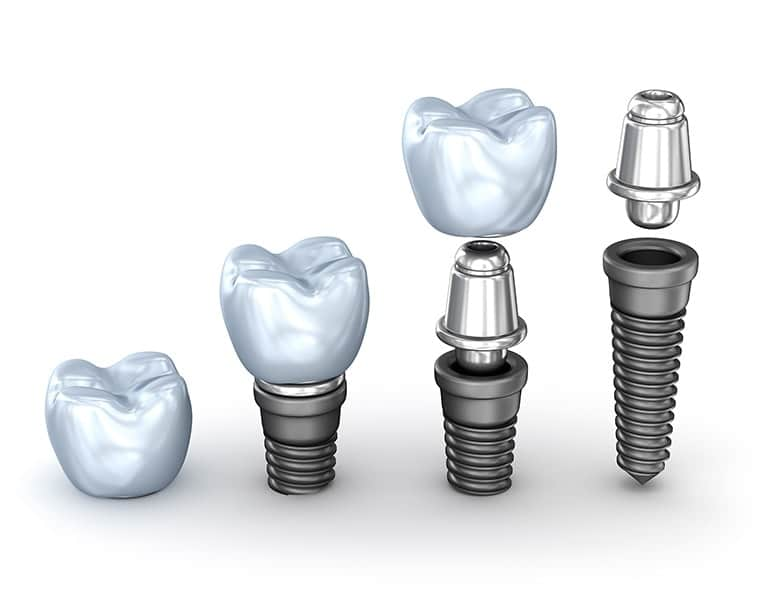 Dental Implant Cost Toronto