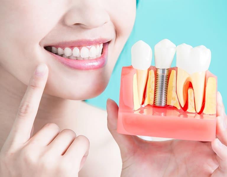 Dental Implants Toronto
