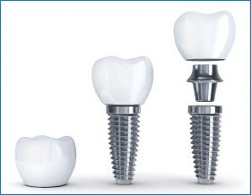 dental-implants-toronto