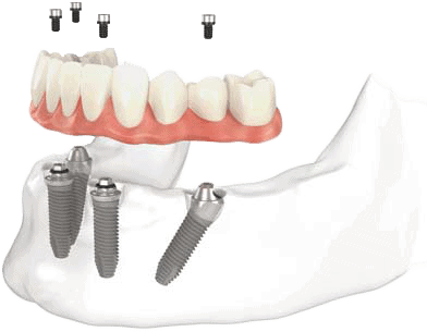 denture-implants-toronto
