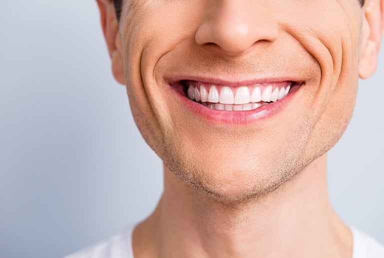 Cosmetic Dentistry Tooth Reshaping Toronto