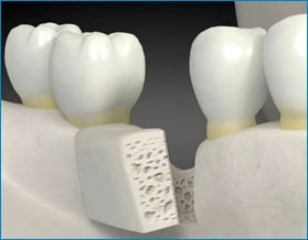 dental-implant-cost-bone-graft