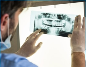 dental-implant-xray-cost