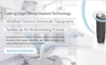 Dental Implants Technology