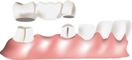 image of dental bridge