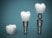 Dental implants on a beautiful blue background