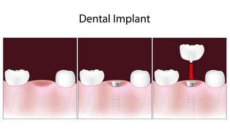 image of how dental implants work