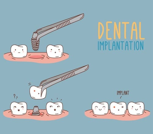 Dental Implants vs Traditional Tooth Replacement Options