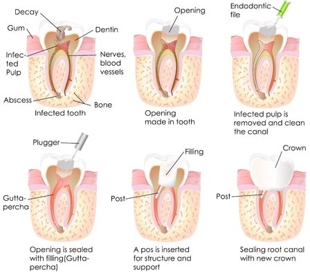 Root Canal Therapy FAQs