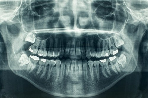 Preliminary Procedures For Dental Implants