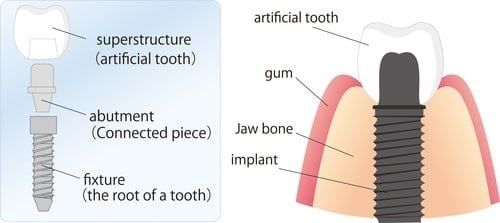 different parts of a dental implant