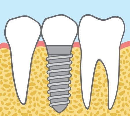 Osseointegration In Dental Implants