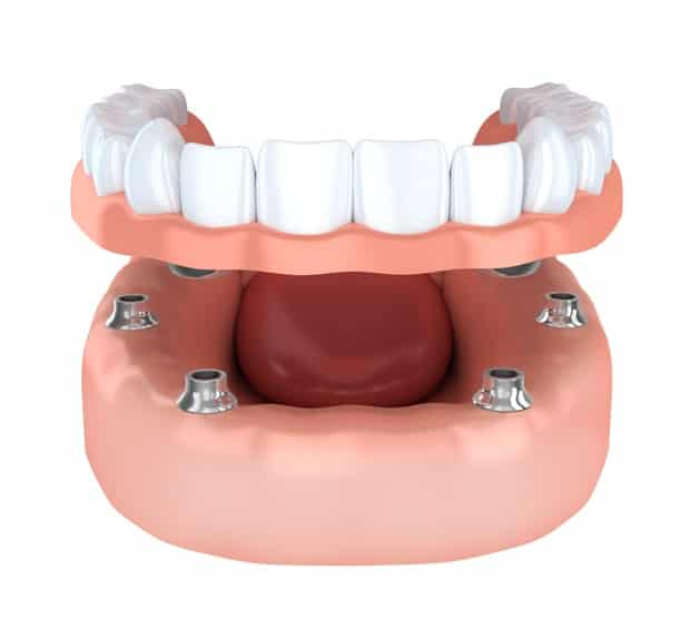 Benefits Of Dental Implant Overdentures
