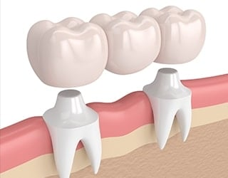 regrow teeth stem cells