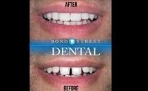 cosmentic dentist Toronto
