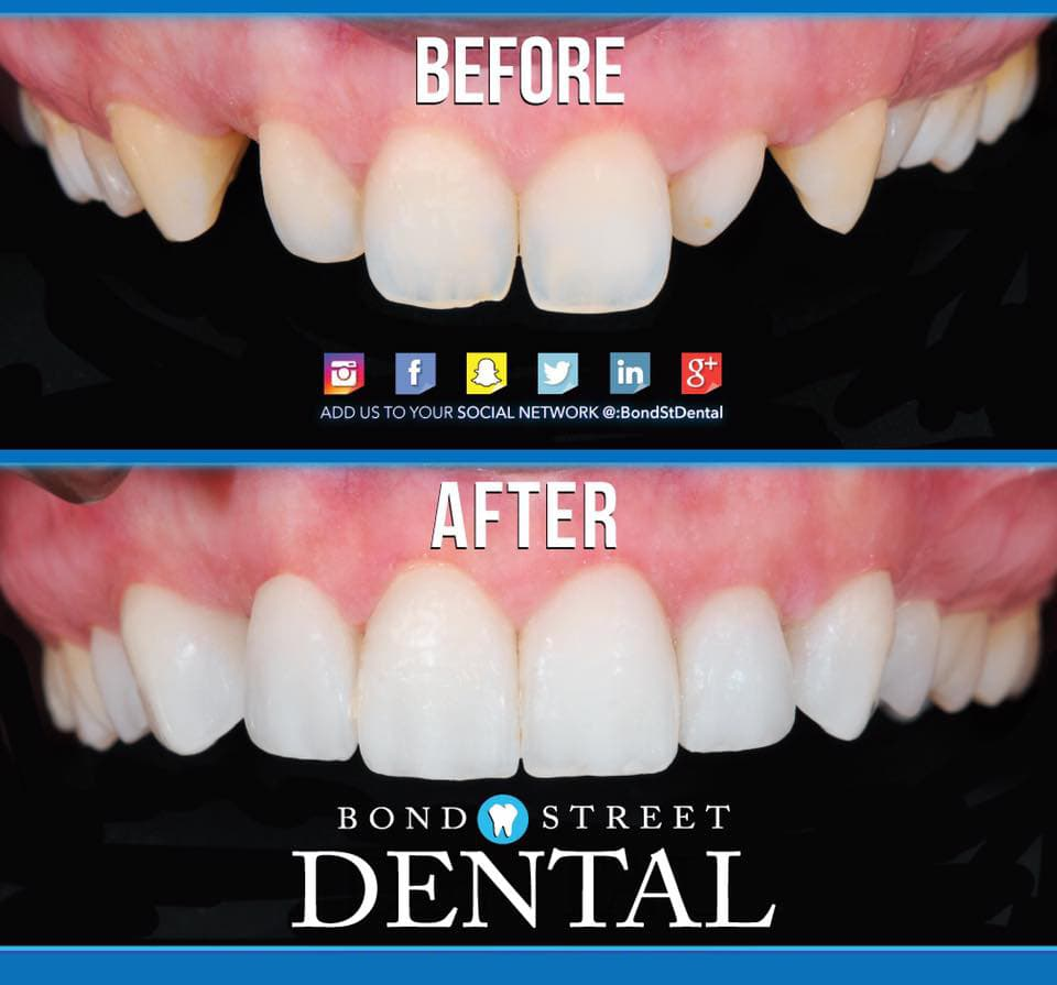 Dental Implants Pictures Before & After Photos of Dental Implants