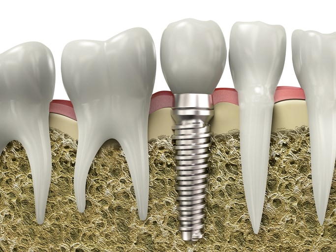 Very high resolution 3d rendering of a dental implant.