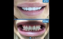 tooth implants Toronto before and after pictures