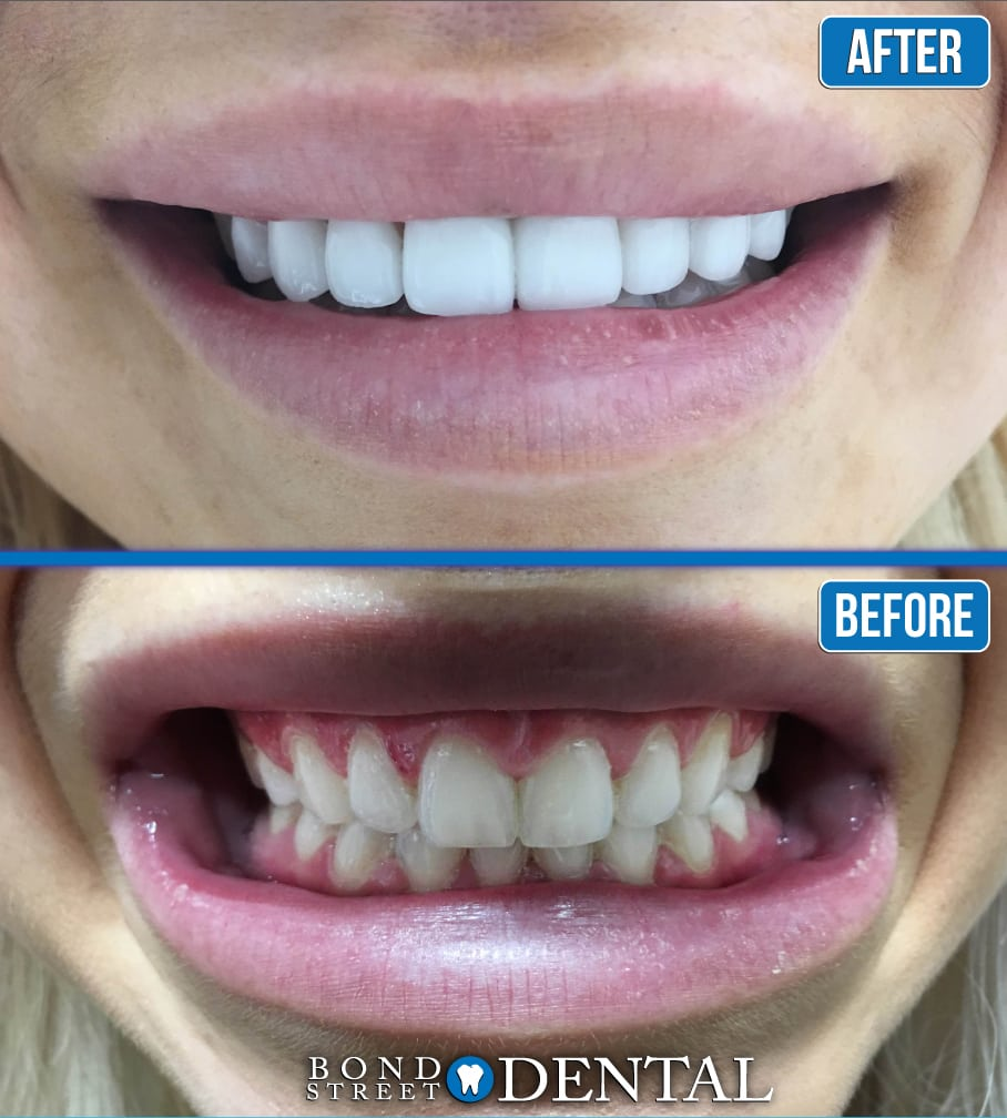dental implants before and after