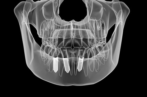 Dental implant and teeth. x-ray view