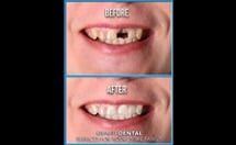 dental implants pictures before and after