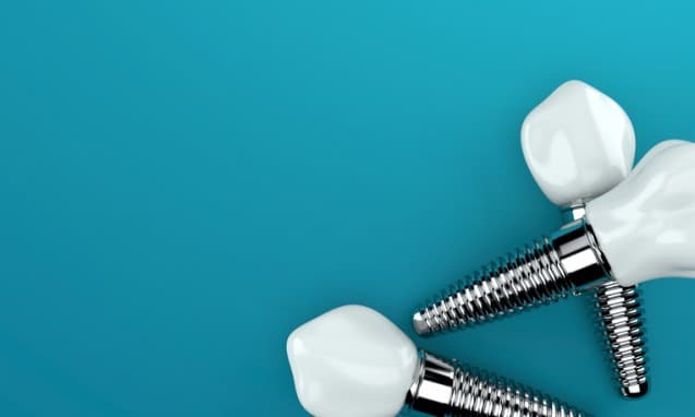How Dental Implants Can Save Your Jaw