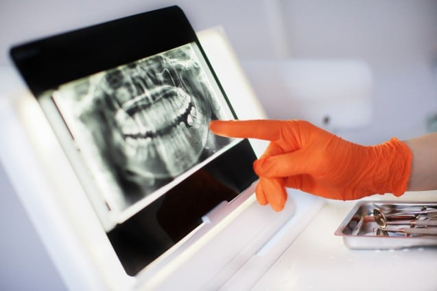 Why You Should Choose Our Dental Implants Clinic For Your Next Procedure
