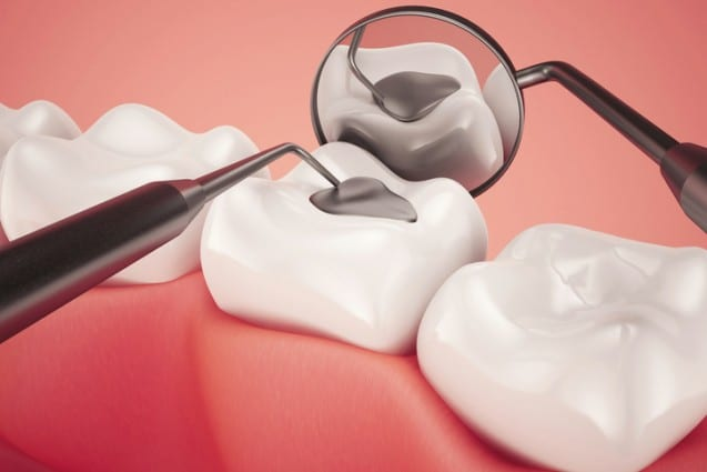 Everything You Need To Know About Cavities