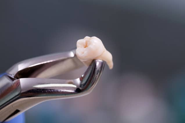 Everything You Need to Know about Tooth Extractions