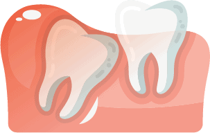Angularly Aligned Wisdom Tooth