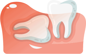 Horizontally Aligned Wisdom Tooth