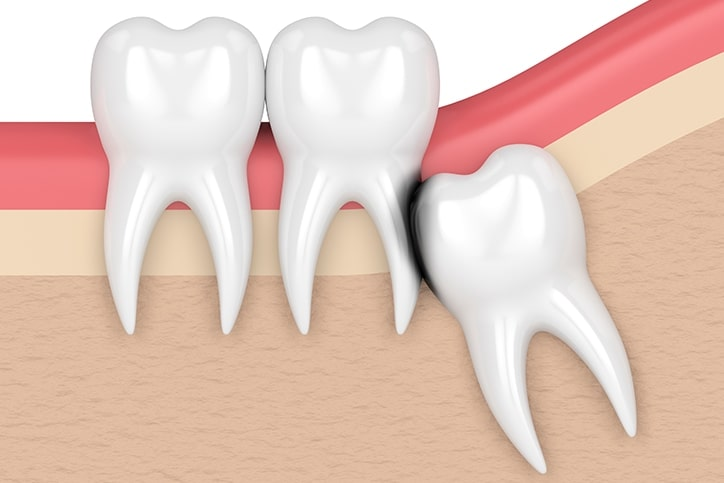 Prevent Adjacent Tooth Damage with Wisdom Teeth Extraction in Toronto