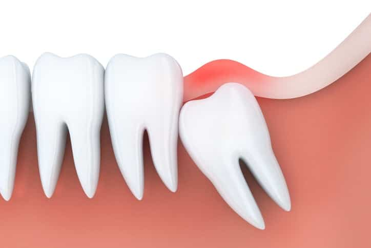 Prevent Infection with Wisdom Teeth Removal