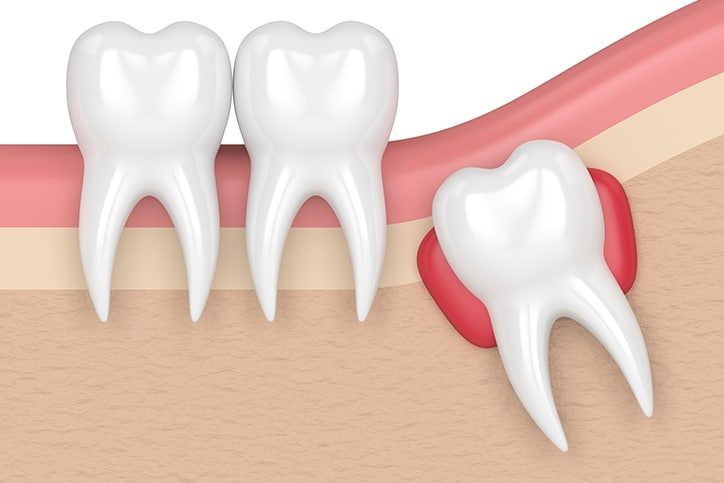 Prevent Crowding with Wisdom Teeth Extraction