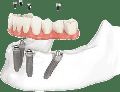 Dental Implants Toronto Starting at $895 - Dental implants Clinic