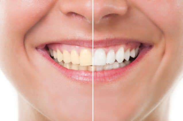 Why You Should Get Your Teeth Whitened By A Professional