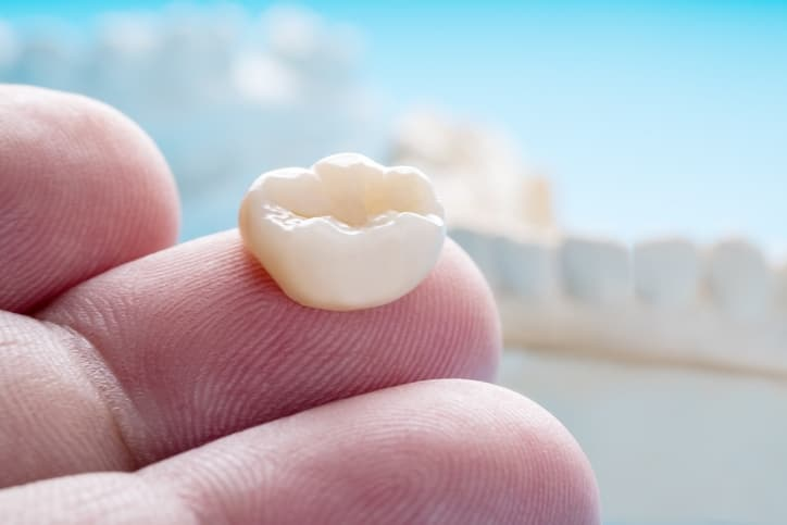 Dental Bridge VS Implant: What's the Difference?