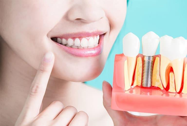 All On 4 Dental Implants Dental Implants