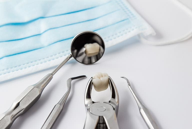 All On 4 Dental Implants Tooth Extraction