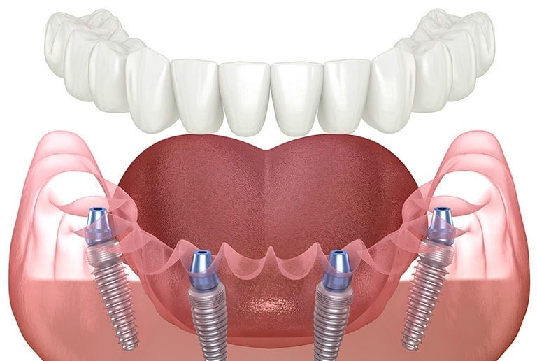 All On 4 Dental Implants Toronto
