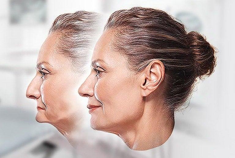 All On Four Dental Implants Jawbone Preservation