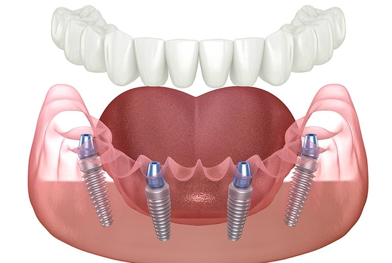 Cosmetic Dentistry All On 4 Dental Implants Toronto