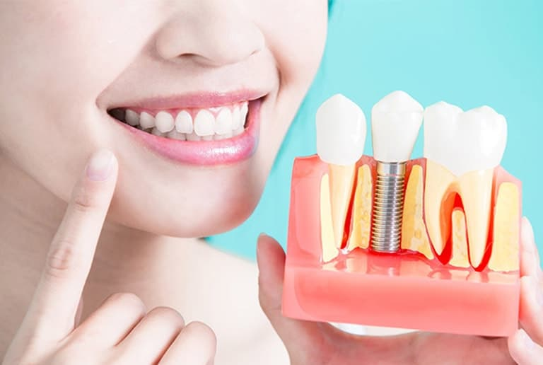 Cosmetic Dentistry Dental Implants Toronto