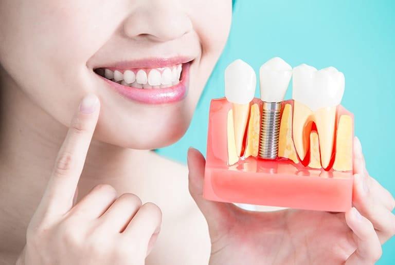 Periodontal Treatment Dental Implants