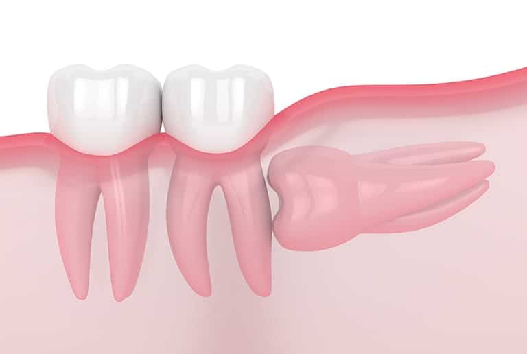 Tooth Extraction Wisdom Teeth