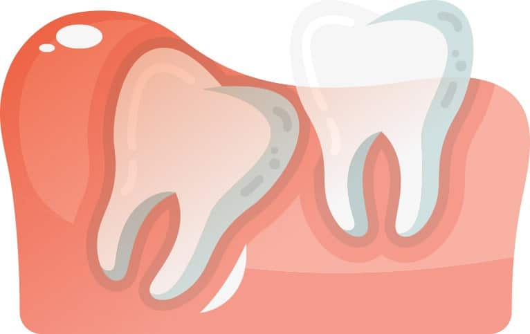 Angularly Aligned Wisdom Tooth