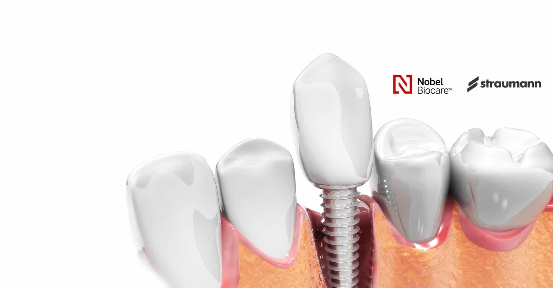Best dental implants Near Downtown toronto